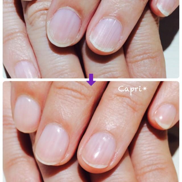 ケア&クリアジェル&潤いマッサージ。乾燥していた爪や肌は見違えるようになります。